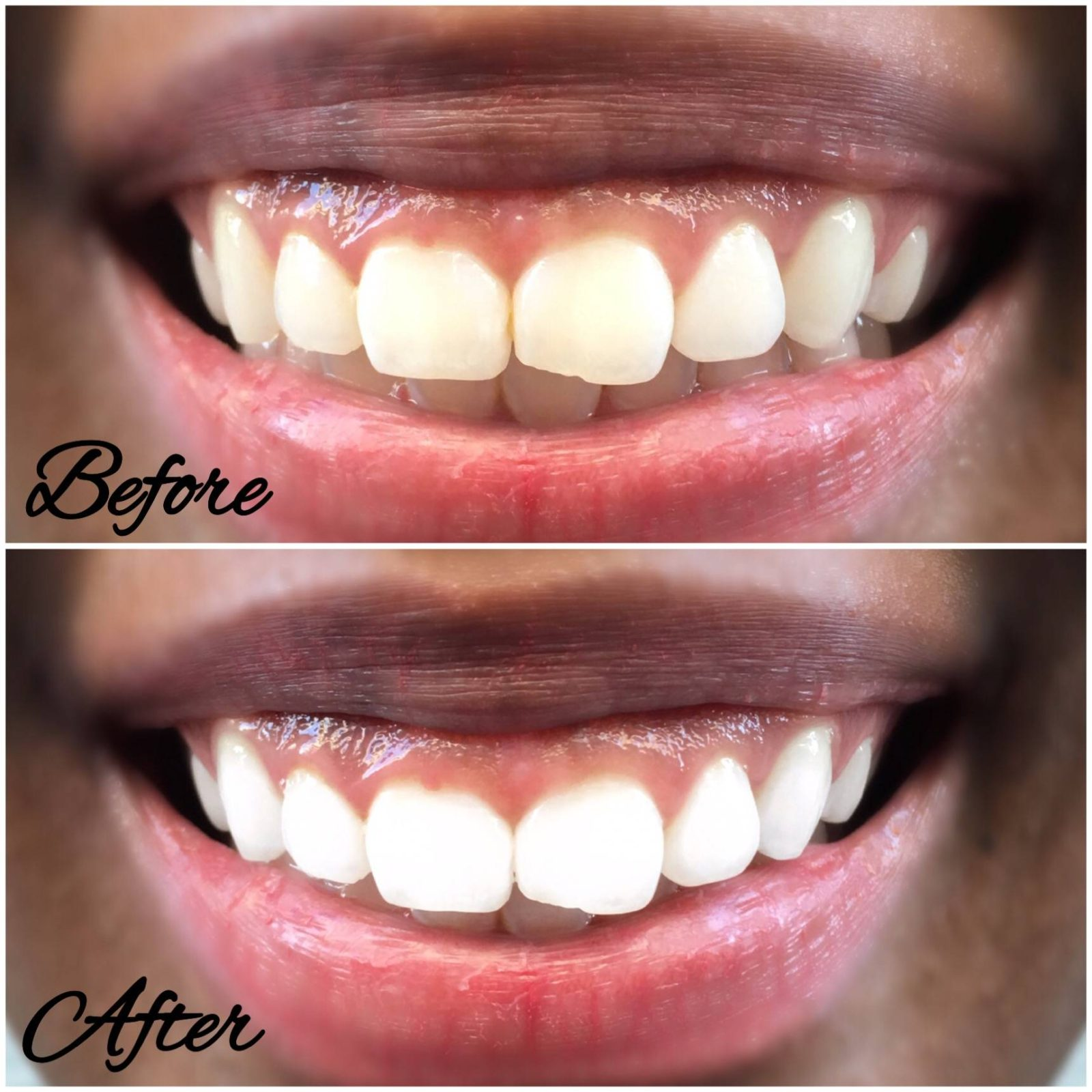 Home teeth whitening results- LeFabChic